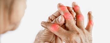آرتریت روماتوئید یا مزمن